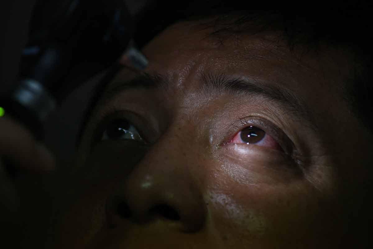 oftalmologo, ojos, salud
