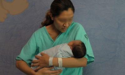 Especialistas del IMSS corrigen labio y paladar hendido al momento de nacer