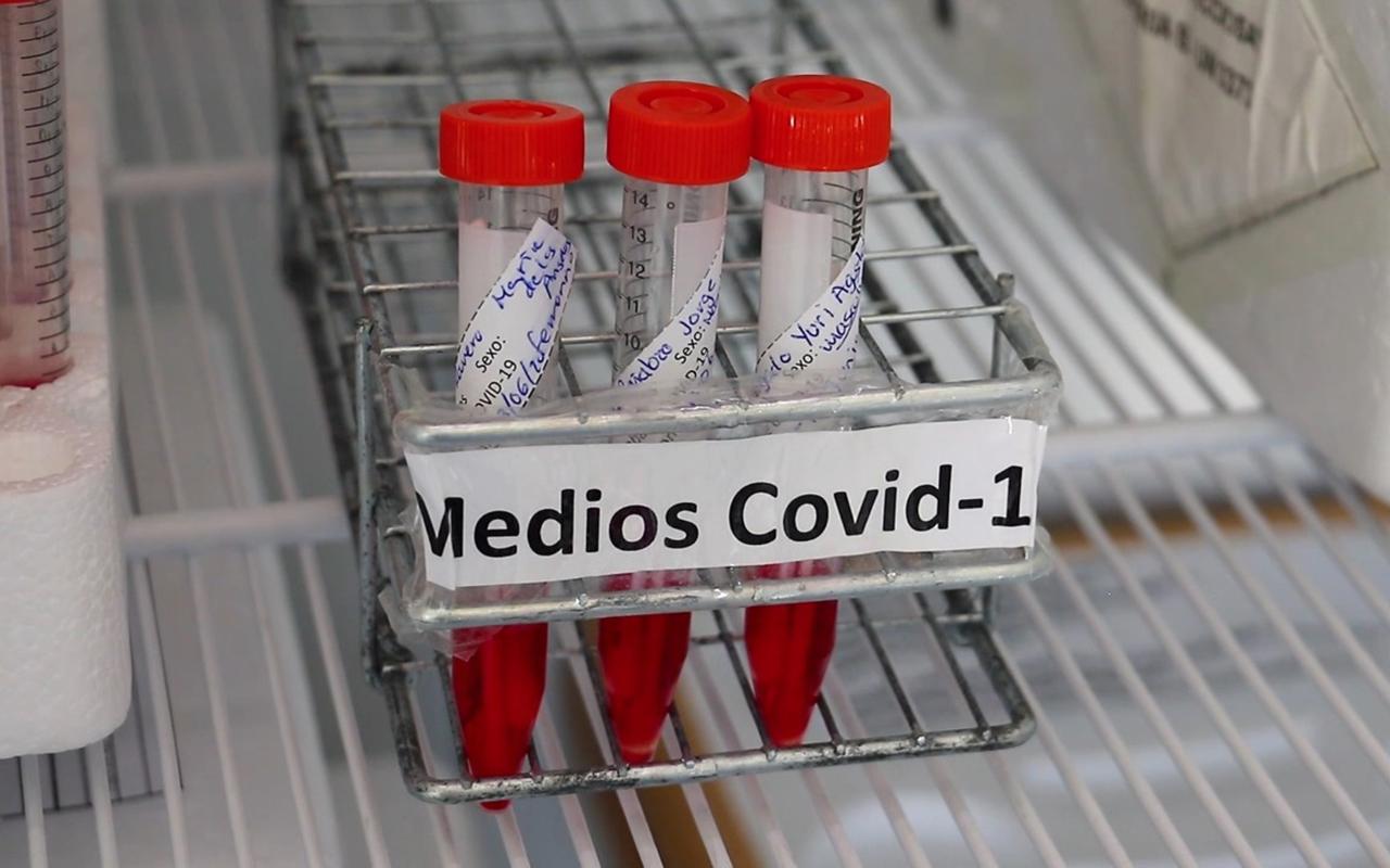 Inician pruebas para detectar influenza y Covid en una sola muestra