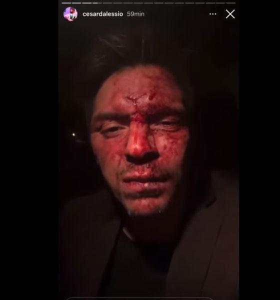 Exgobernador golpea a hijo de Lupita D'Alessio