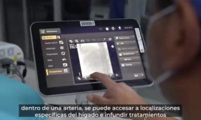 Hospital de Oncología del IMSS, punta de lanza en terapias de quimioembolización
