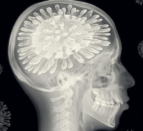 Pacientes con Covid podrían padecer Alzheimer. Foto: Twitter
